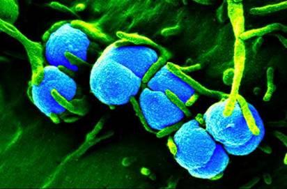 bệnh lậu ở nam giới và cách điều trị